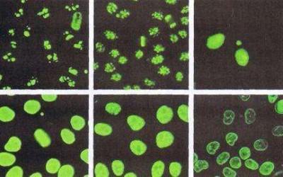 抗SSA、抗SSB抗体阳性的意义【转载】