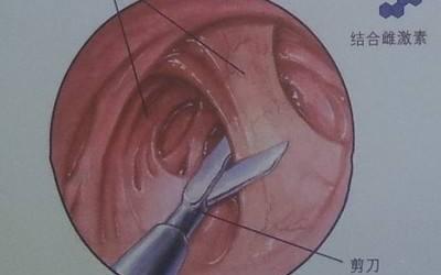 宫腔粘连如何诊治? (转载)