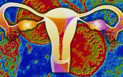 女性下腹痛,小心骨盆腔发炎!
