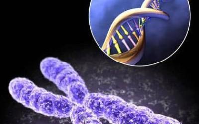 染色体常见综合征-俄罗斯试管婴儿